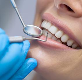 Ästhethische Zahnbehandlung
